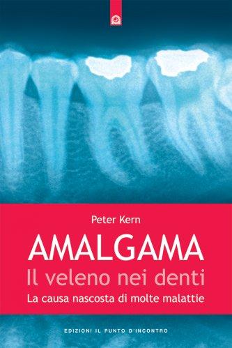 Amalgama: il Veleno nei Denti (eBook)