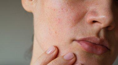 Rimedi pelle grassa: 3 alleati naturali contro le impurità